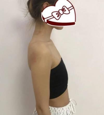 小袋蜀 的假体隆胸术前照