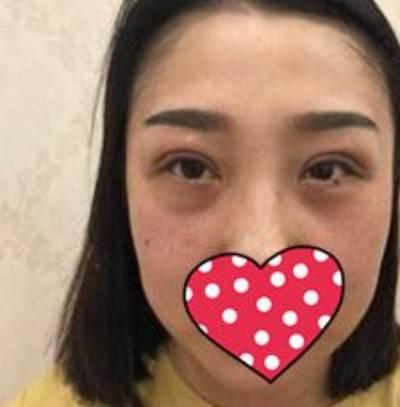 在南方医科大学珠江医院做双眼皮修复手术后4天