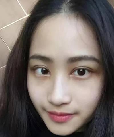 在广州积美医疗整形美容医院做的全切双眼皮手术后15天