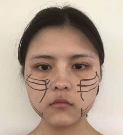 在广州积美医疗整形美容医院做了埋线提升手术后