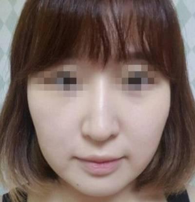 广州积美医疗整形福田庆三为我做轮廓三件套+鼻修复手术前