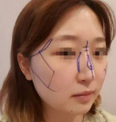 广州积美医疗整形福田庆三为我做轮廓三件套+鼻修复手术后