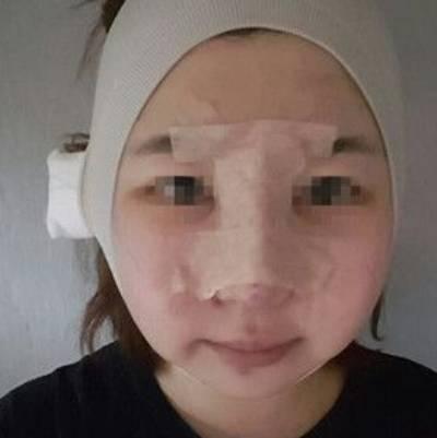 广州积美医疗整形福田庆三为我做轮廓三件套+鼻修复手术后第2天