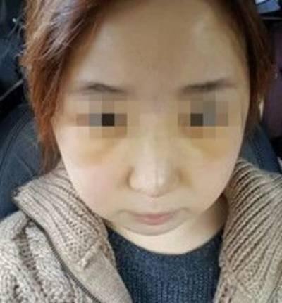 广州积美医疗整形福田庆三为我做轮廓三件套+鼻修复手术后第8天