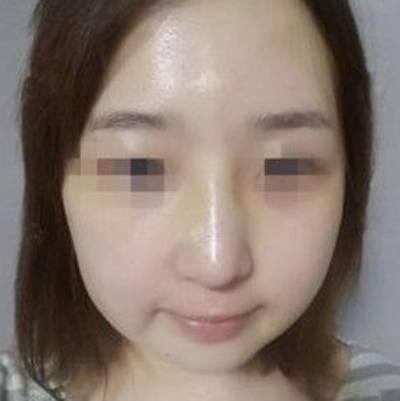 广州积美医疗整形福田庆三为我做轮廓三件套+鼻修复手术后1个月