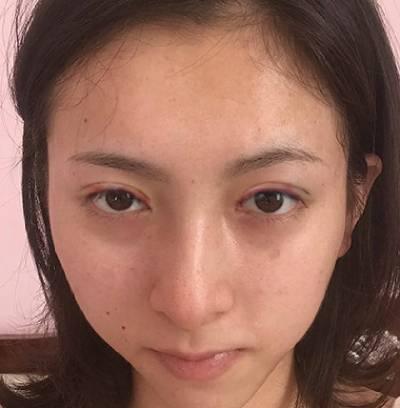 在广州晨曦美容医院找廖轶平做的全切双眼皮手术后7天