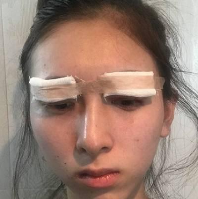 在广州晨曦美容医院找廖轶平做的全切双眼皮手术后