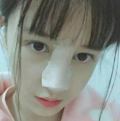 在广州晨曦美容医院找廖轶平医生做的硅胶假体隆鼻手术后8天