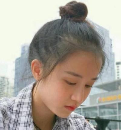 在广州晨曦美容医院找廖轶平医生做的硅胶假体隆鼻手术后28天