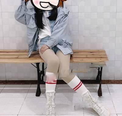 在广州晨曦美容医院做吸脂瘦大腿手术后15天