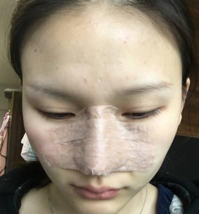 广州韩后整形医院王擎做鼻综合整形手术后7天