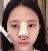 鼻子不好看的我,终于在广州韩后整形医院做了自体肋软骨隆鼻得到了拯救