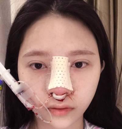 在广州韩后整形医院做了自体肋软骨隆鼻手术后3天