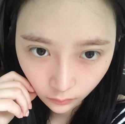 在广州韩后整形医院做了自体肋软骨隆鼻手术后20天
