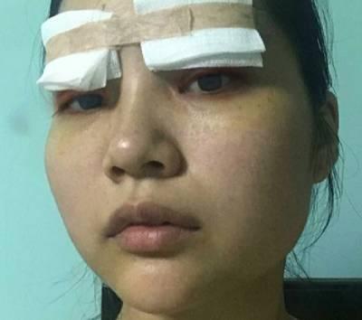 去广州韩后整形医院找李永翰做全切双眼皮手术后