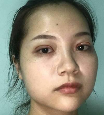 去广州韩后整形医院找李永翰做全切双眼皮手术后6天