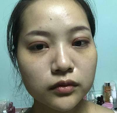 去广州韩后整形医院找李永翰做全切双眼皮手术后10天