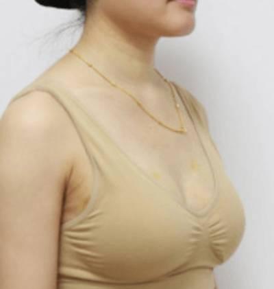 到广州韩后整形医院做自体脂肪隆胸手术后5天