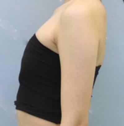 我的思念的自体脂肪隆胸术前照