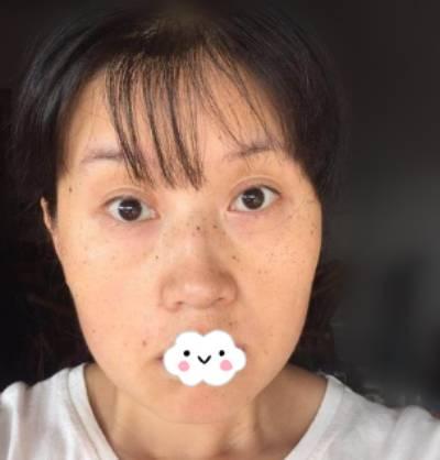 中关村整形美容医院苏明山给我做的激光祛斑手术后7天