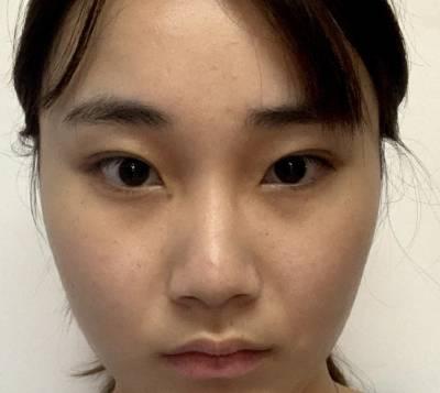 在广州飞悦整形医疗美容医院做的鼻综合整形手术前
