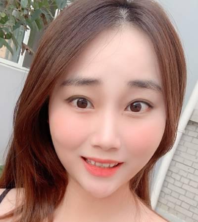 在广州飞悦整形医疗美容医院做的鼻综合整形手术后15天