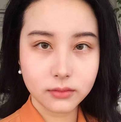 不得不说广州飞悦的班安华为我做的内切去眼袋手术特别好,眼袋瞬间没有了