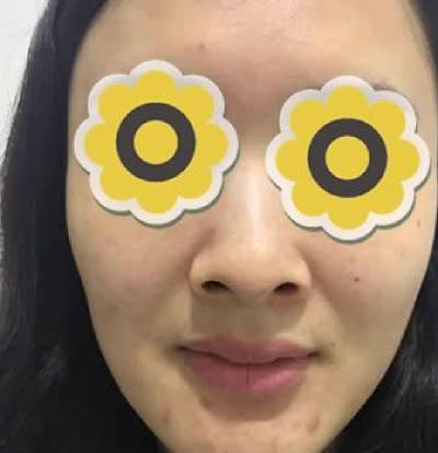 时光不染的膨体假体隆鼻术前照