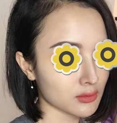 时光不染的膨体假体隆鼻术后照