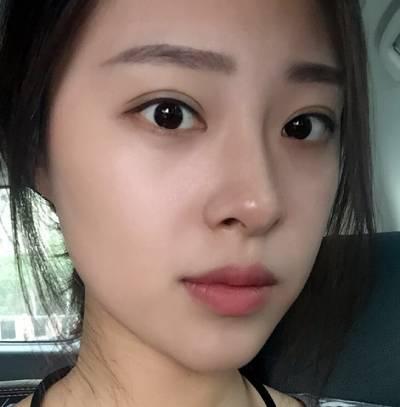 在重庆精美整形医院做了自体脂肪隆鼻手术后30天