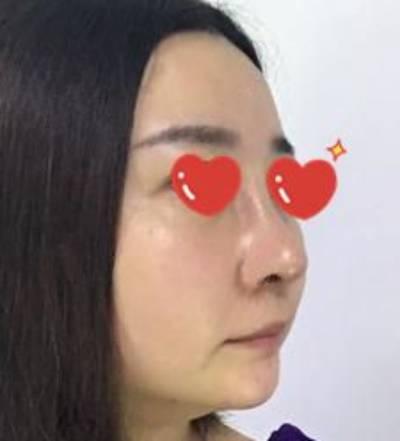 找田永华做了假体隆鼻修复手术后7天