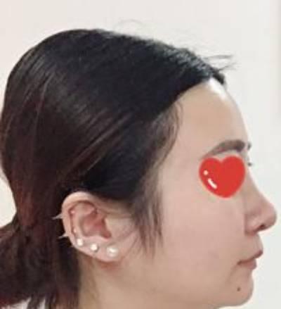 找田永华做了假体隆鼻修复手术后30天