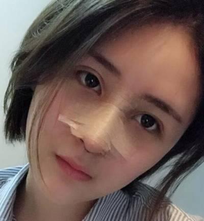 在重庆精美整形医院找田永华做鼻综合整形手术后5天