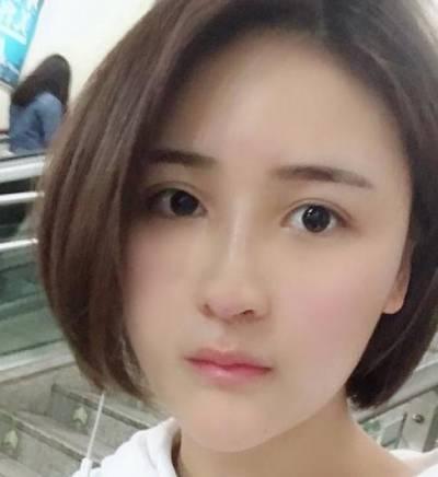在重庆精美整形医院找田永华做鼻综合整形手术后20天
