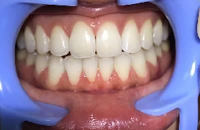 霞霞的超声波洗牙术后照
