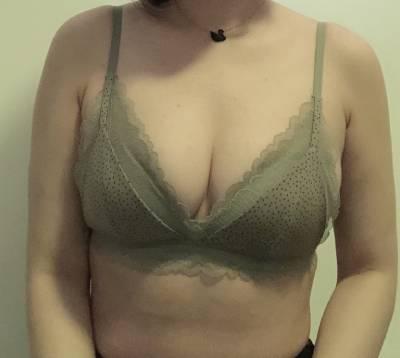 王志强院长为我做的自体脂肪隆胸手术后25天·