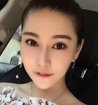 在重庆好美整形医院做的自体脂肪丰眼窝手术后3个月