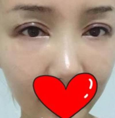 在北京美莱的付晓慧做了玻尿酸填泪沟手术后