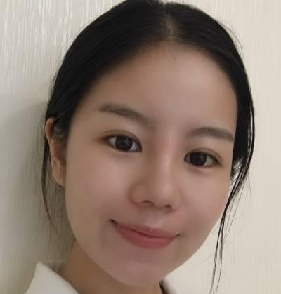 在重庆好美找毕胜做鼻综合整形手术后