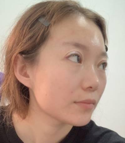 去重庆星宸找彭绍宗做眼综合整形手术后7天