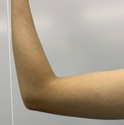 顾怜的吸脂瘦手臂术前照