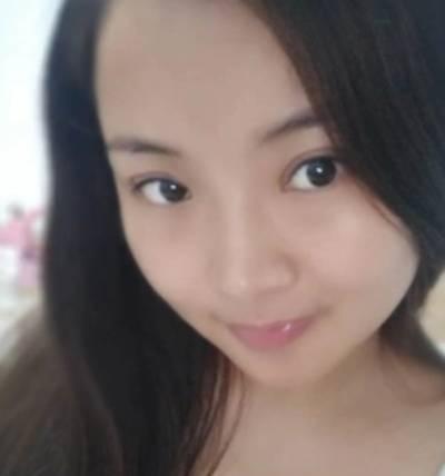 去重庆超雅找梁杰院长做埋线双眼皮手术后2天