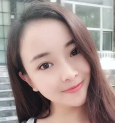 去重庆超雅找梁杰院长做埋线双眼皮手术后20天