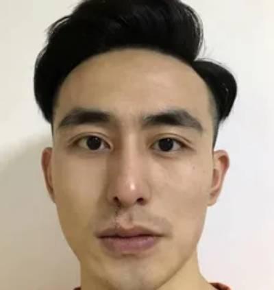 杨东运院长为我做的手术祛疤手术后40天