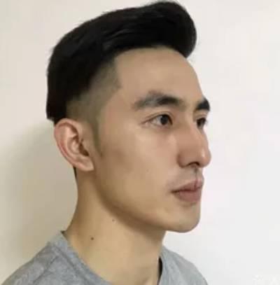 杨东运院长为我做的手术祛疤手术后