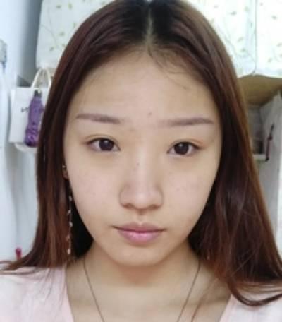 去重庆好美找杨东运院长做了手术祛疤手术后半个月