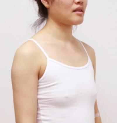 黎音的自体脂肪隆胸术前照