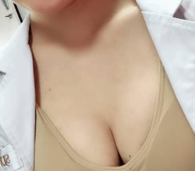 黎音的自体脂肪隆胸术后照