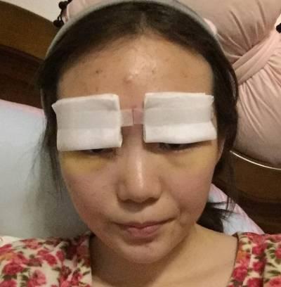 在郑州辰星找杨建申医生做眼综合整形手术后