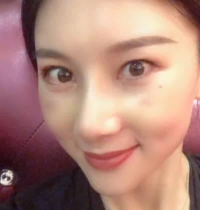 在郑州辰星整形医疗美容医院做了假体隆鼻修复手后13天